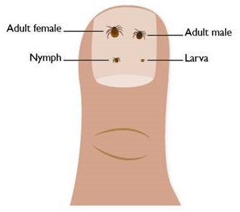 Illustration of a finger nail with ticks of various ages on it © Health Protection Scotland